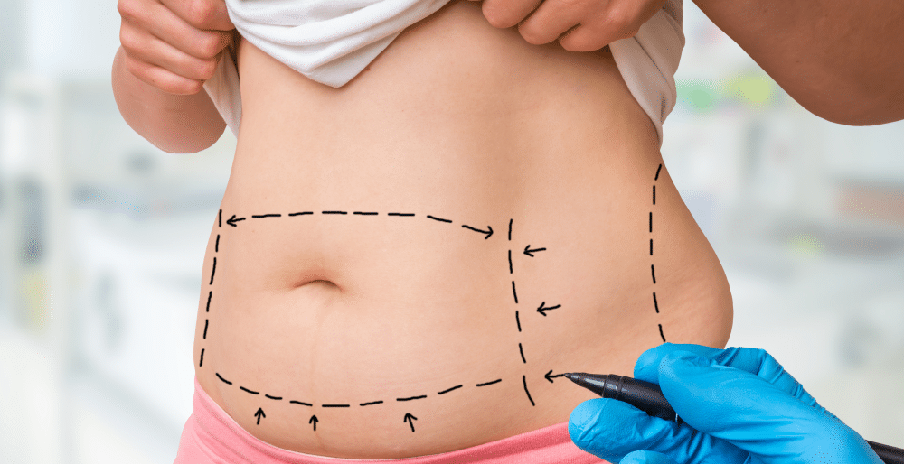 anestesia para abdominoplastia